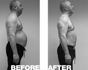 fitzpatrick-before-after